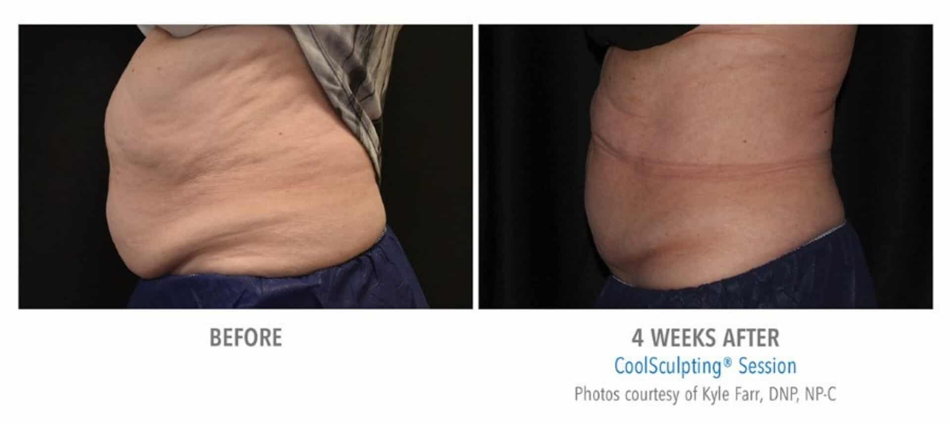 coolsculpting_before_and_after_Docere_Strongsville_6